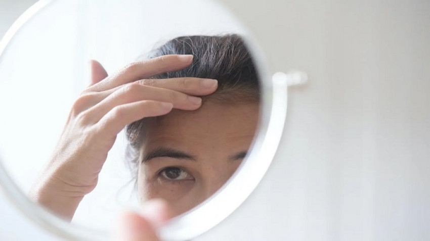 Non-Surgical Hair Systems: An Effective Cosmetic Hair Loss Solution